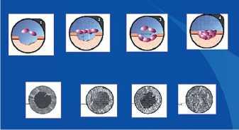 Схема и электронная микроскопия изменений мембраны картриджа при исследовании