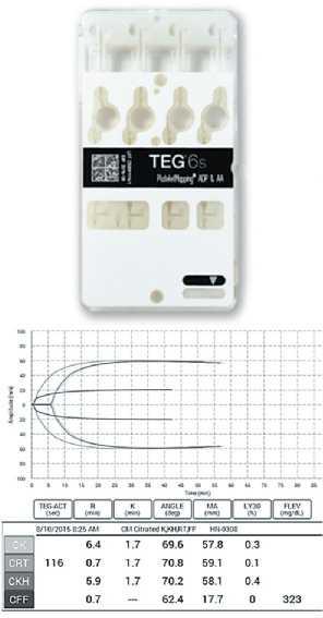 Показатели, полученные TEG6s